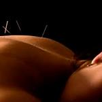 mujer-de-espaldas-con-tratamiento-de-agujas-de-acupuntura