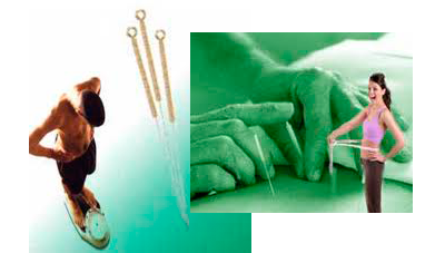 un-hombre-se-pesa-y-una-mujer-se-mide-el-contorno-en una-sesión-de-acupuntura